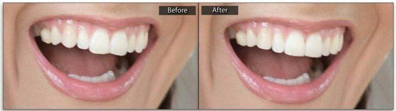 Создание красивых зубов