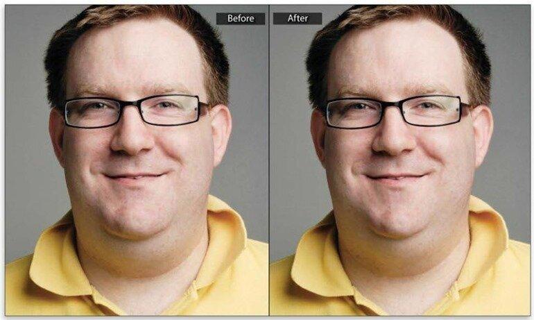 Уменьшение челюстей и двойных подбородков