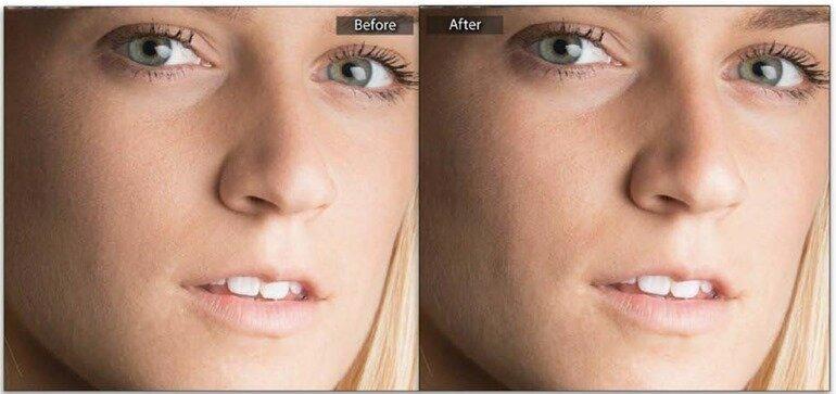 Смягчение кожи с сохранением текстуры